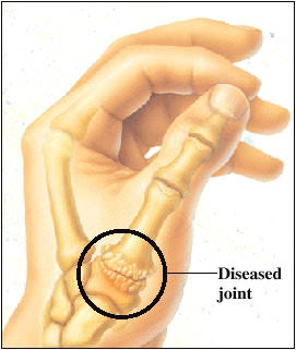 Thumb Basal Joint Arthritis Dr. Alejandro Badia Orthopedic Hand Surgeon Cure and Treatments for Joint Arthritis Carpal Metacarpal Surgery