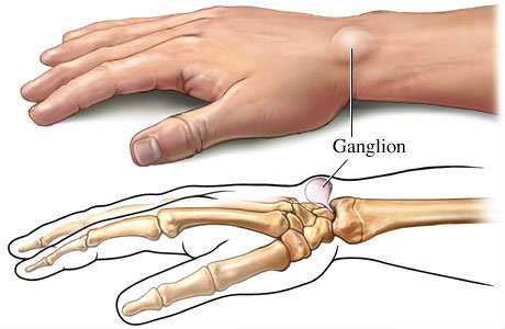Natural Cure for Ganglion Cysts with Home Remedies
